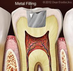 metal_filling.jpg
