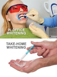 teeth_whitening_options.jpg