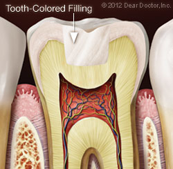 tooth_colored_filling.jpg