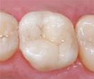 tooth_colored_fillings.jpg