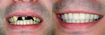 Giesting Family Dentistry, PC in Brookville IN
