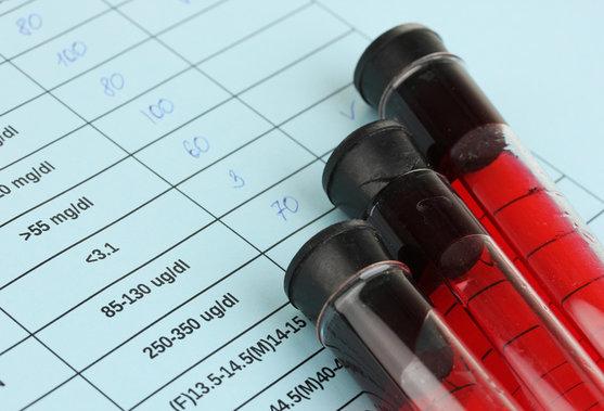 Elk River Chiropractor | Elk River chiropractic Wholesale Blood Lab Testing Service |  MN |
