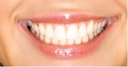 Jacksonville Dentist   Jacksonville dental Bonding and White Filling    FL