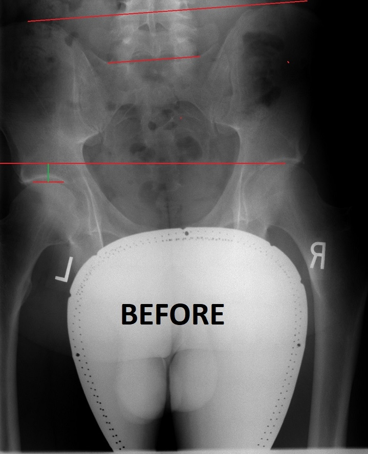 scoliosis8_before.png