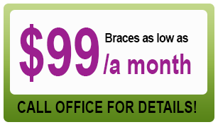 braces_coupon