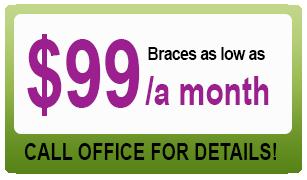 braces_coupon