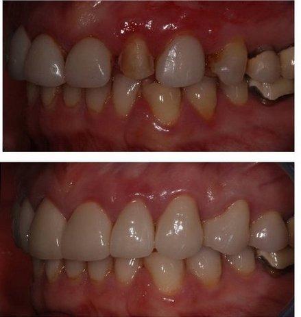 Metairie dentist | Metairie dentist|  LA |