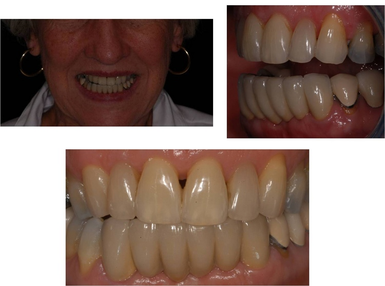 Prosthodontic Specialists in Metairie LA