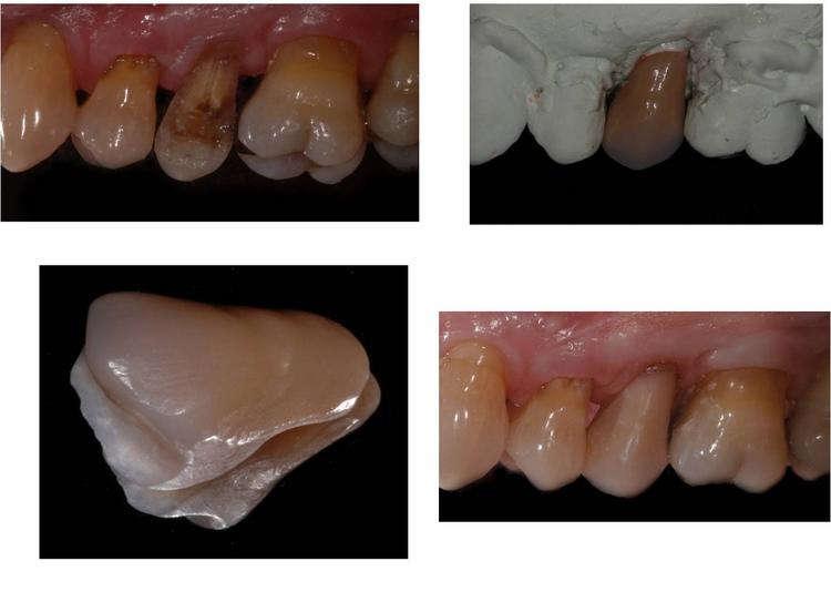 Prosthodontic Specialists in Metairie LA