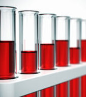 Wheat Ridge Chiropractor | Wheat Ridge chiropractic Functional Blood Chemistry Analysis |  CO |