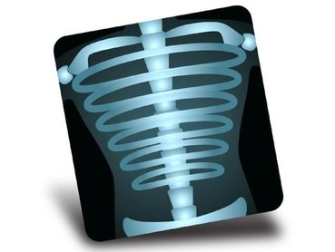 Wheat Ridge Chiropractor | Wheat Ridge chiropractic X-Ray |  CO |