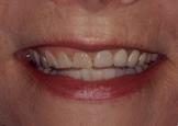 My teeth were severly worn...
