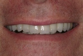 My smile looks great now!