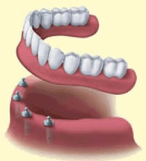 4_Implant_Supported_Denture.jpg