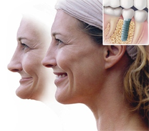 5_Dental_Implants_and_Facial_Structure.jpg