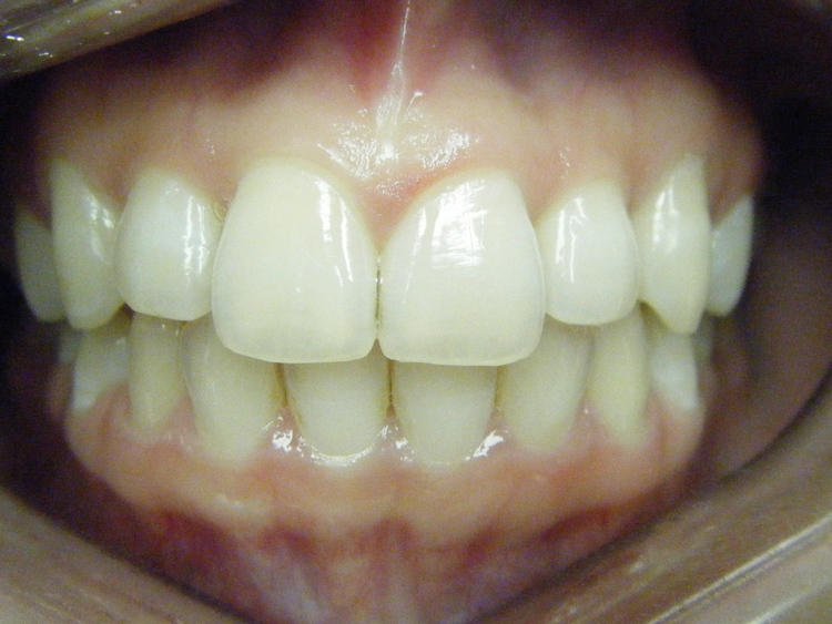 After Invisalign