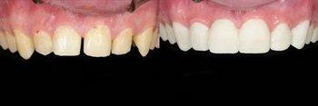 Warner Village Dental in Woodland Hills CA