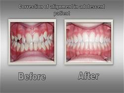 Orthodontist for Boulder Colorado