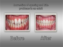 Orthodontist for Lafayette Colorado