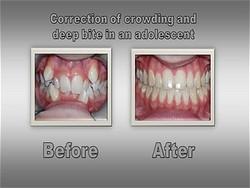 Orthodontist in Westminster Colorado