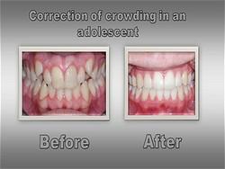 Orthodontist for Louisville Colorado