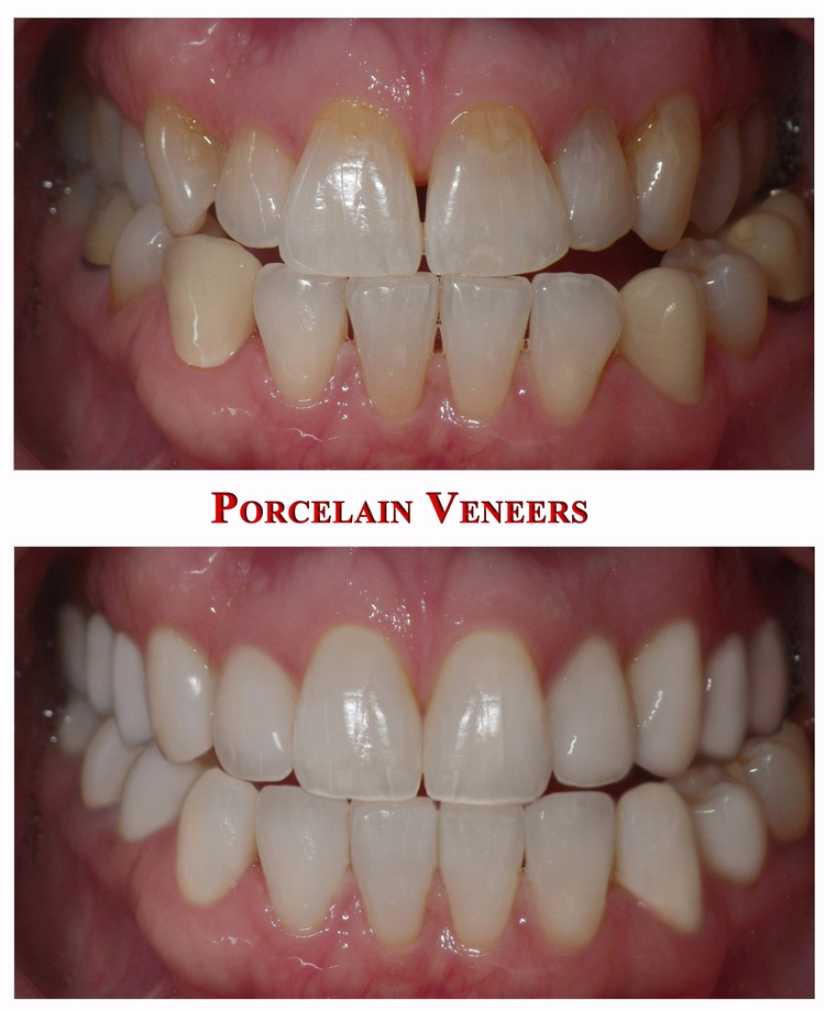 Porcelain_Laminate_Veneers___Before___After.jpg