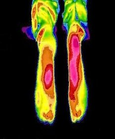 Baton Rouge Podiatrist   Baton Rouge Thermal Imaging Analysis   LA   Foot And Ankle Institute  