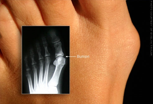 flickr_photo_of_bunion_and_xray.jpg