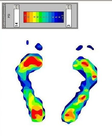 Baton Rouge Podiatrist | Baton Rouge Dynamic Gait and Pressure Load Analysis | LA | Foot And Ankle Institute |