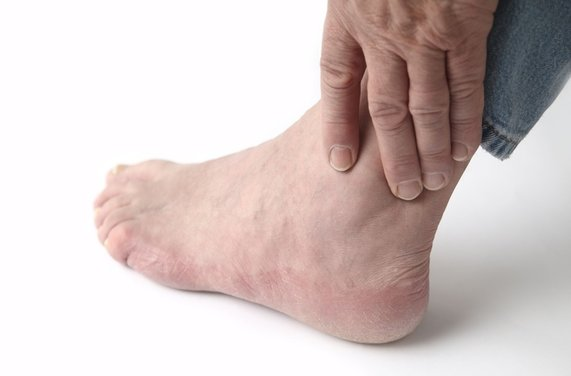 Aberdeen Podiatrist | Aberdeen Evaluating an Ankle Sprain | NJ | Central Jersey Ankle & Foot Care Specialists |