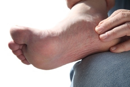 Aberdeen Podiatrist | Aberdeen Athlete's Foot: A Skin Problem for All Seasons | NJ | Central Jersey Ankle & Foot Care Specialists |