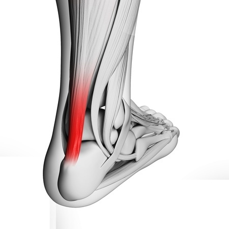 Aberdeen Podiatrist | Aberdeen 5 Ways to Avoid Achilles Tendonitis | NJ | Central Jersey Ankle & Foot Care Specialists |