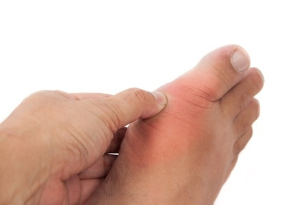 Aberdeen Podiatrist | Aberdeen Dealing with Swollen Feet and Ankles | NJ | Central Jersey Ankle & Foot Care Specialists |