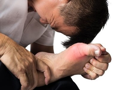 Aberdeen Podiatrist   Aberdeen Do's and Don'ts for Avoiding Gout   NJ   Central Jersey Ankle & Foot Care Specialists  