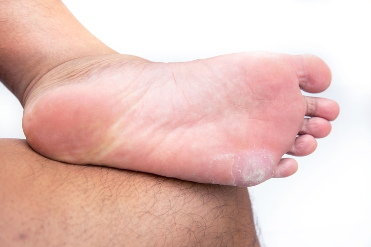 Aberdeen Podiatrist | Aberdeen Corns and Calluses: Protecting Your Feet | NJ | Central Jersey Ankle & Foot Care Specialists |
