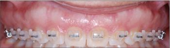 Jace Hansen Periodontics and Dental Implants in Boise ID