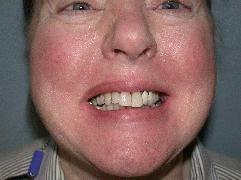 Stempora Dental in Woodridge IL