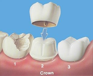 Canonsburg Dentist | Canonsburg dental Crowns |  PA