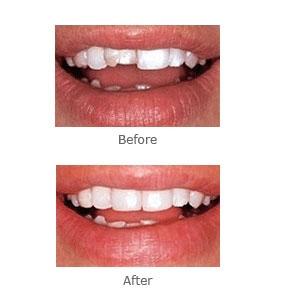 Canonsburg Dentist | Canonsburg dental Bonding and White Filling |  PA