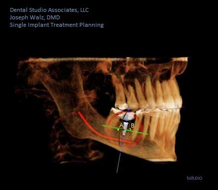 Willey_Robert_Implant1.jpg