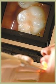 Batesville Dental in Batesville IN