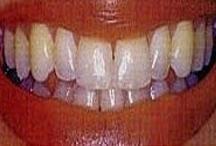 teethwhiteningbef.jpg