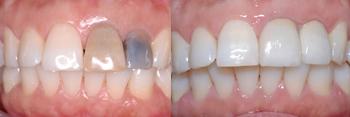 black_teeth.JPG