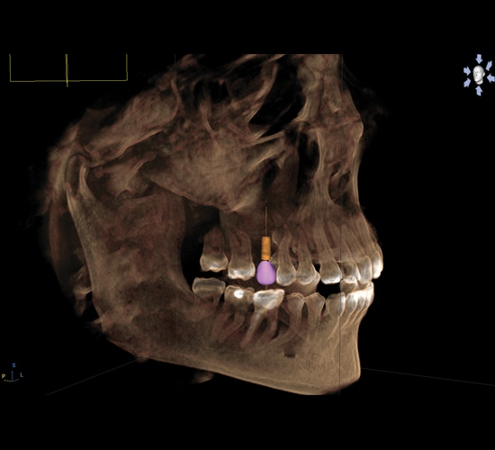 Lake_Stevens_Implants___Periodontics_gallery_GCI2.jpg