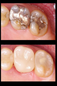 South Lake Family Dentistry in Lake Stevens WA