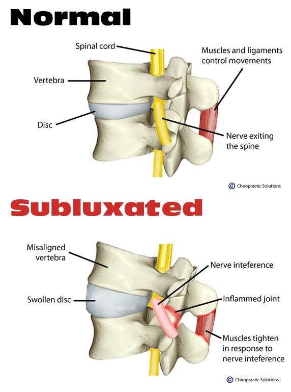 Rolling Meadows Chiropractor | Rolling Meadows chiropractic What is a Subluxation |  IL |