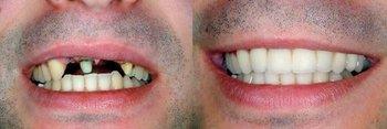 Teodore Dental in Orlando FL