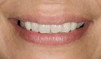 smile_transition1.jpg