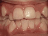 crowding_of_the_teeth_after.jpg