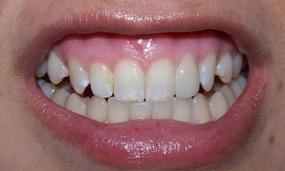 veneer to fix crooked tooth